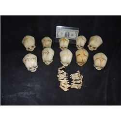 300 HUGE COLLECTION OF DEAD BABY SKULLS WITH JAWS