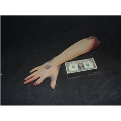SEVERED ARM WITH GORE AND MISSING FINGER