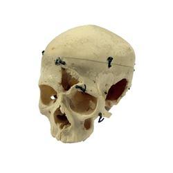 Bones TV Show Adult Skull