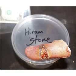 THE KNICK INFECTED THUMB APPLIANCE HIRAM STONE