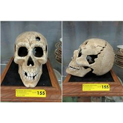 Life Size Cast Iron Skull with Moveable Jaw