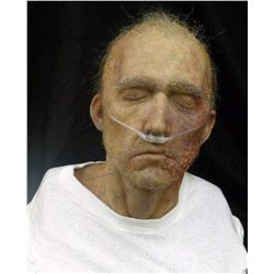SEVERED SILICONE HEAD BUST WITH DISEASE