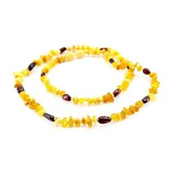 Adult Baltic Cherry Honey Amber Necklace