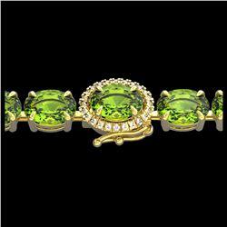 1.77 ctw Citrine & VS/SI Diamond Ring 14K Rose Gold