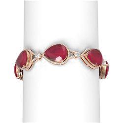 79.53 ctw Ruby & Diamond Bracelet 18K Rose Gold