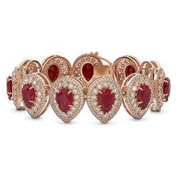 56.04 ctw Certified Ruby & Diamond Victorian Bracelet 14K Rose Gold