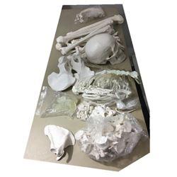 Hell Fest Skeletal System